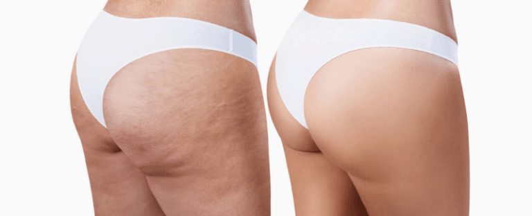 Get Rid Of Cellulite On Butt
